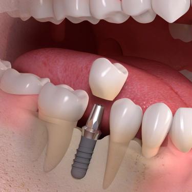 失った歯を補う方法