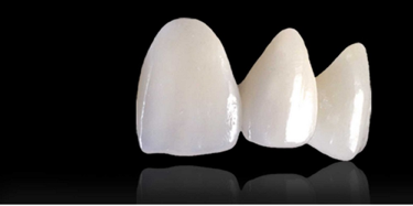 歯周病・予防治療